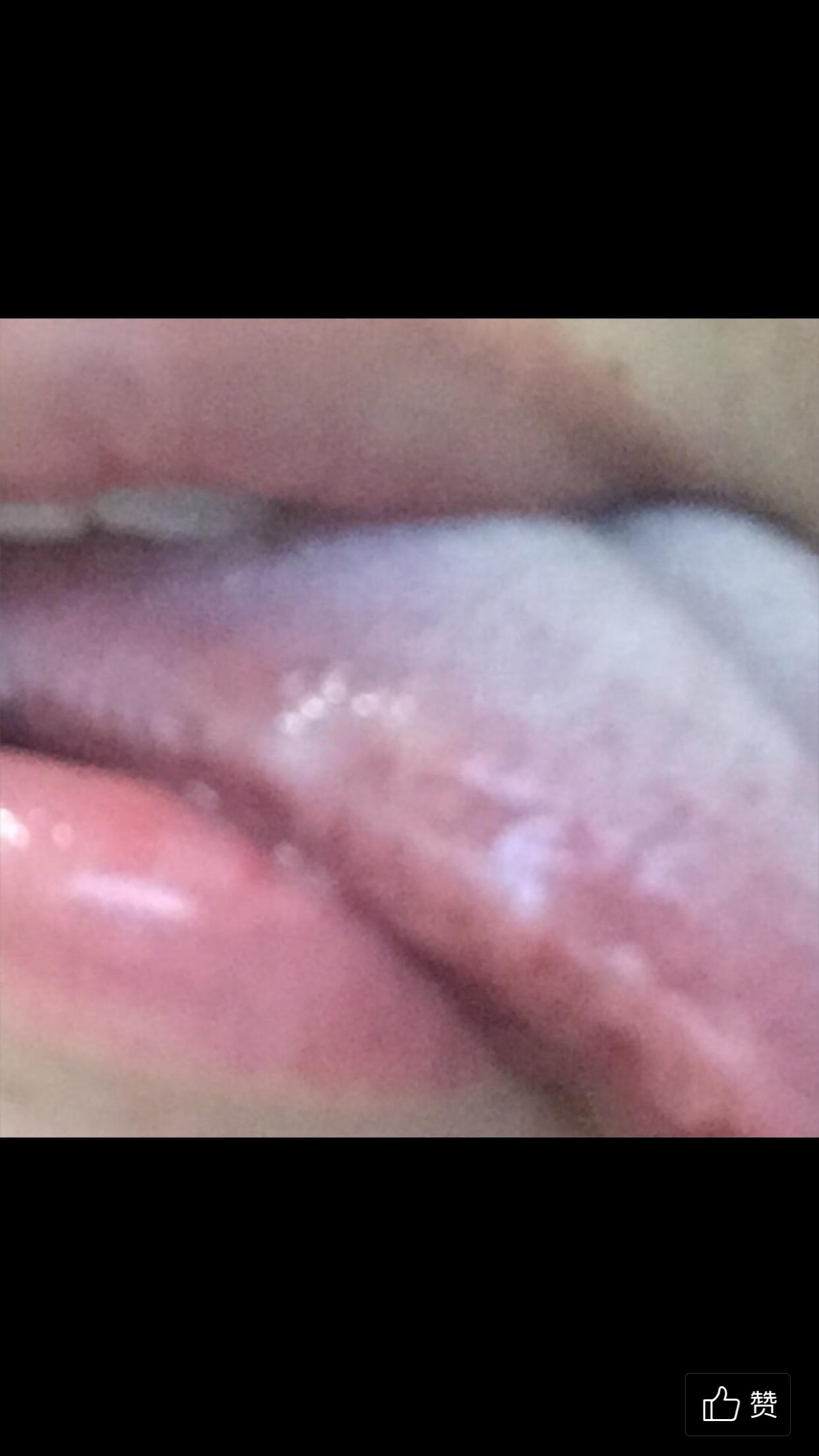 白色念珠菌感染
